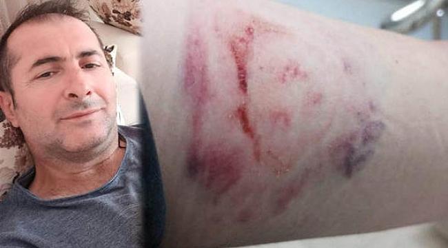 Doktora sataştı, sağlık çalışanının kolunu ısırdı