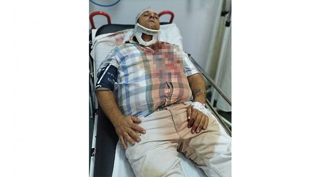 Servis kavgasında öldüresiye dövüldü!