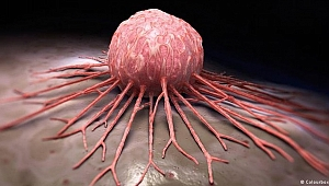 Kocaeli'de 5 yılda 17 bin kişi kanser oldu!