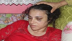 20 gün yoğun bakımda kaldı... Eşi öldüresiye dövdü!