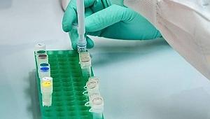 Koronavirüs ilacına katkı sağlayacak!