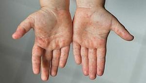 El ayak hastalığı nedir?